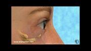 انیمیشن جراحی زیبایی پلک پایین