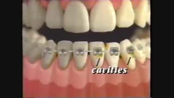 نحوه مسواك و نخ دندان زدن كودكان-دندانپزشكی لبخند كودك