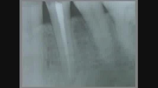 ساخت پست و کور دندان با پست فلزی در مطب - DentoClic