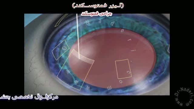 لیزر فمتوسکند - مرکز چشم پزشکی دکتر علیرضا نادری