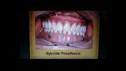 ایمپلنت و پروتز دندانی