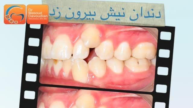 ارتودنسی قبل و بعد دندان نیش بیرون زده | دکتر داودیان