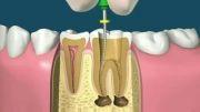 طریقه پرکردن و عصب کشی دندان !!!!