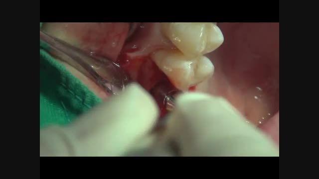 جراحی سینوس لیفت Closed- ایمپلنت Luna