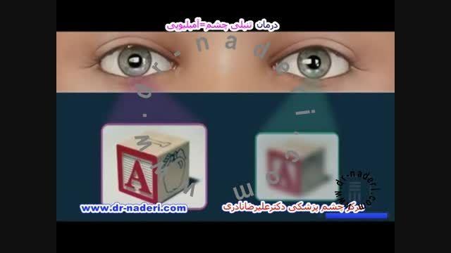 درمان تنبلی چشم - مرکز چشم پزشکی دکتر علیرضا نادری