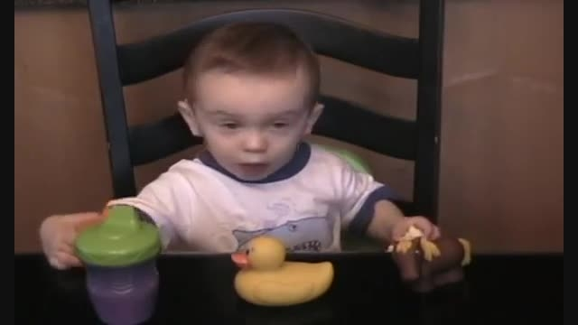 کودک کم شنوا 10 ماه پس از کاشت حلزون