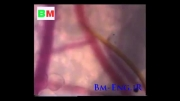 فیلم نیش زدن مالاریا-مهندسی پزشکی مهندسی زندگیBm-Eng.iR