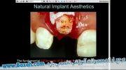 زیبایی های ایمپلنت - Implant Aesthetics
