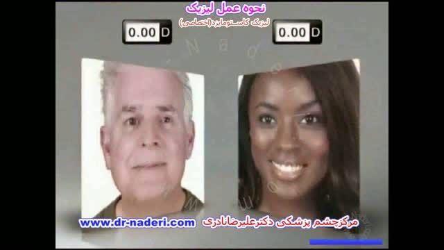 لیزیک اختصاصی - مرکز چشم پزشکی دکتر علیرضا نادری
