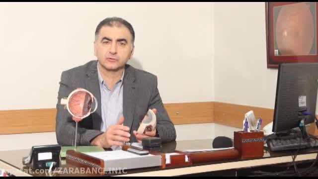 دکتر فرید کریمیان- قوز قرنیه
