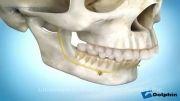 دکتر مسعود داودیان :: جراحی جلو آوردن فک پایین