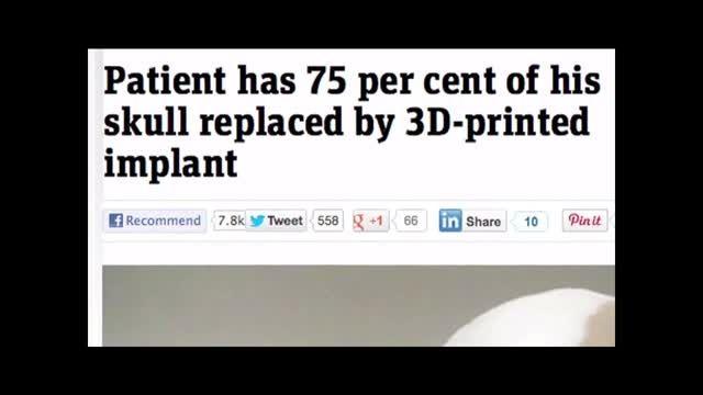 کاربرد پرینتر سه بعدی در پزشکی