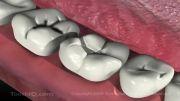 انیمیشن پوسیدگی دندان