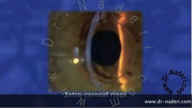 مروری کلی بر قوز قرنیه -سایت چشم پزشکی دکتر نادری