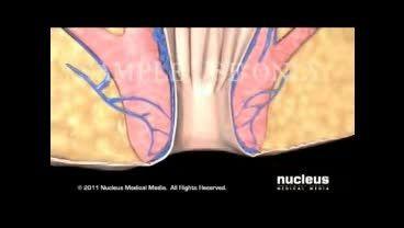بیماری همورویید یا بواسیر چیست(دوبله)