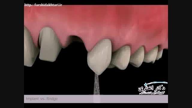 مقایسه بریج دندانی و ایمپلنت دندان