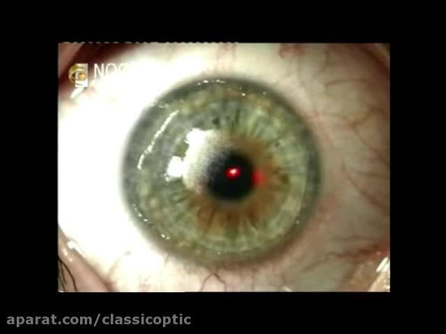 عمل جراحی لیزیک - بهمراه توضیحات پزشک