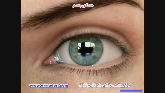 خشکی چشم - مرکز چشم پزشکی دکتر علیرضا نادری