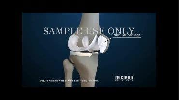 آرتروز و درد زانو چیست(دوبله)