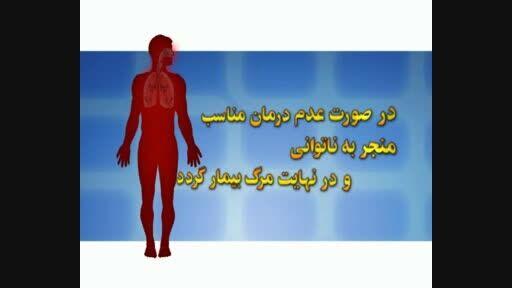بیماری سل یک بیماری مزمن عفونی