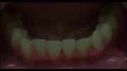 ارتودنسی بدون کشیدن دندان|عکس قبل و بعد - دکتر داوودیان
