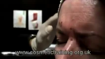 آموزش نقاط مورد تزریق بوتاکس در صورت