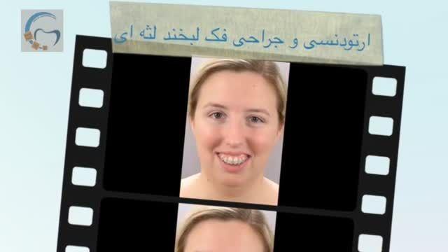 ارتودنسی و جراحی فک لبخند لثه ای   دکتر مسعود داوودیان