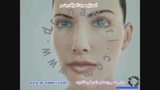 استرابیسم (انحراف چشم)-مرکز چشم پزشکی دکتر علیرضا نادری