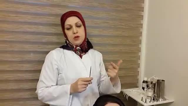دکترراستا:روش صحیح چسب زدن بینی بعد از عمل جراحی