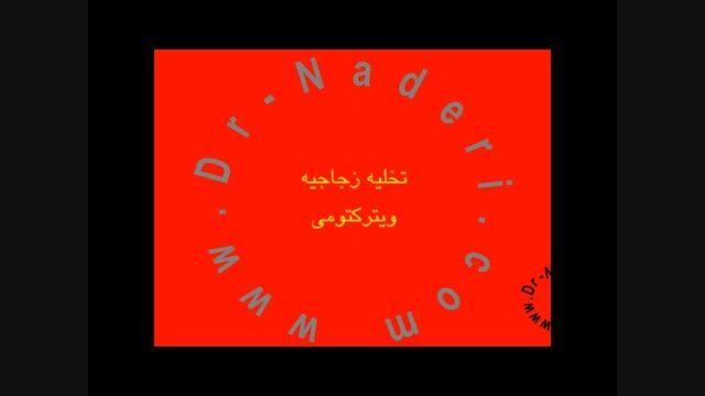 عمل ویترکتومی -مرکزچشم پزشکی دکتر علیرضا نادری