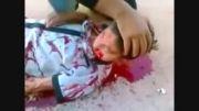 کشتار کودکان در سوریه (بیماری قلبی داری نگاه نکن)
