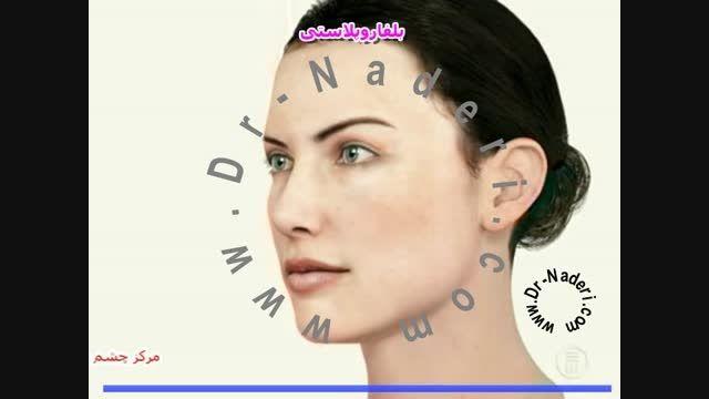 بلفاوپلاستی یاجراحی زیبایی پلک-مرکزچشم پزشکی دکتر نادری