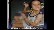 انواع دفورمیتی یا بدشکلی در کودکان مبتلا به فلج مغزی