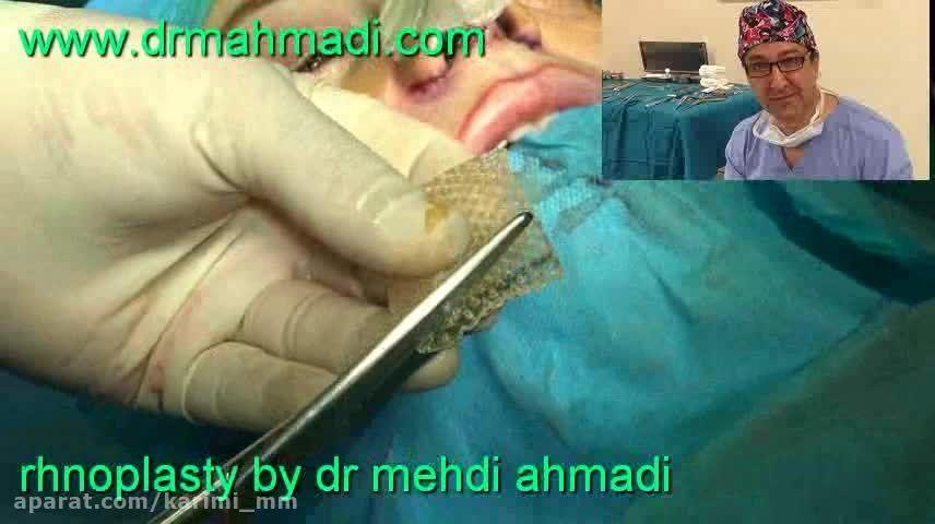 عمل زیبایی بینی(rhinoplasty)توسط متخصص گوش وحلق بینی40