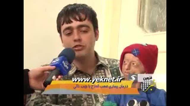 بیماری وحشتناکه پسربچه قزوینی *(برای سلامتیش دعا کنید)*