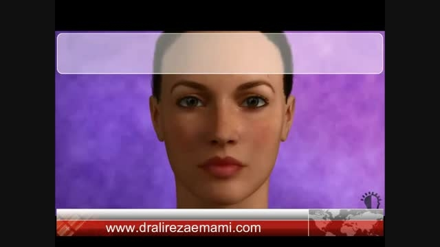 Rhinoplasty surgery animation by dr.emami