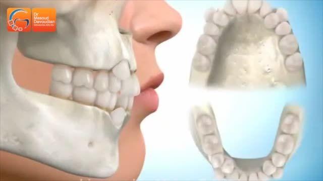 کشیدن دندان برای ارتودنسی | دکتر مسعود داوودیان