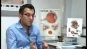 مشاوره عمل لیزر چشم