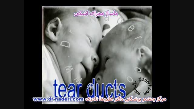 ماساژ مجرای اشکی کودکان - مرکز چشم پزشکی دکتر نادری