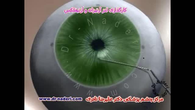 لنزداخل چشمی آرتیفلکس -مرکز چشم پزشکی دکتر علیرضا نادری