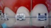 مراکز تخصصی ارتودنسی دکتر فرهاد صدرالدینی : نخ دندان