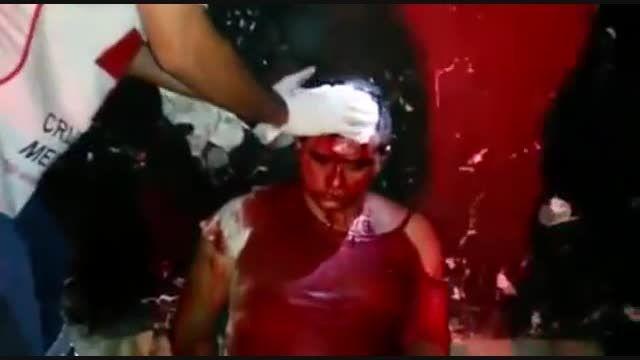دزد به طرز فجیحی زخمی شده توسط پلیس