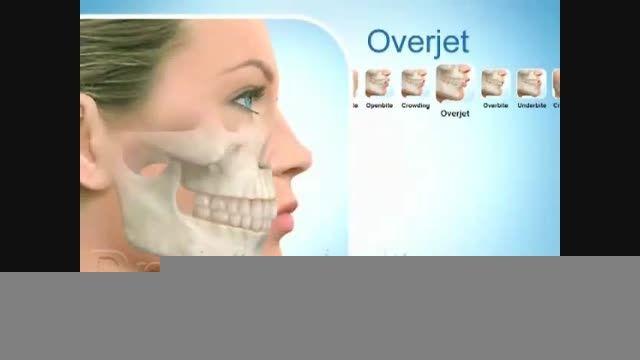 انیمیشن عمل جراحی فک