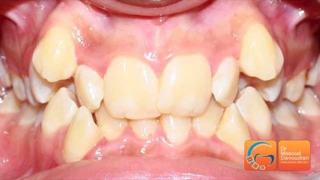 ارتودنسی نامرتبی شدید بدون کشیدن دندان | دکتر داودیان