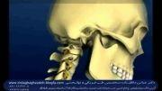 ساختمان ستون فقرات گردنی ودیسک گردن وگردن درد-دکتر دقاق زاده