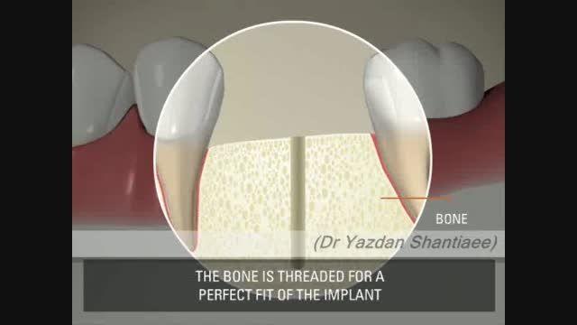 6) ایمپلنت دندانی