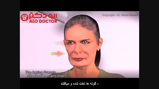 دکتر امان الله قاسم زاده از لیفت صورت می گوید