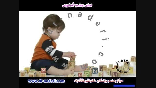آمبلیوپی(تنبلی چشم) - مرکز چشم پزشکی دکتر علیرضا نادری