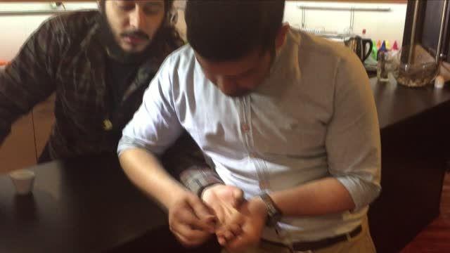 شعبده بازی شکستن انگشت - زیاک