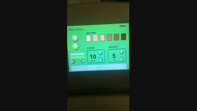 الکس 755 نانومتر آلما لیزر ( بینظیر در لیزر موی زاید )